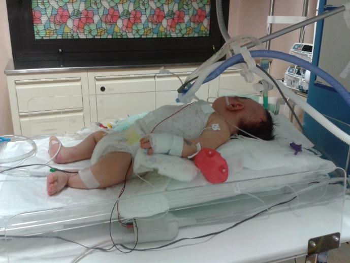 Neonato asfittico sottoposto ad ipotermia terapeutica