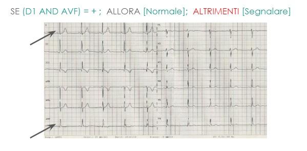 Come verificare se l'asse elettrico all'ECG è corretto