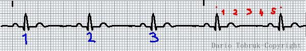 Leggere l'ECG: Leggere la frequenza ecg. Dario Tobruk ®.
