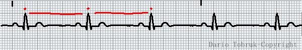 Leggere l'ECG: Ritmo sinusale ecg. Dario Tobruk ®