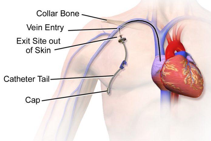guida inserimento catetere venoso centrale