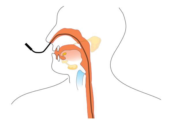 procedura inserimento sondino nasogastrico
