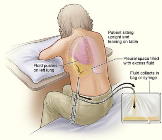 assistenza infermieristica durante toracentesi e all'evacuzione pleurica